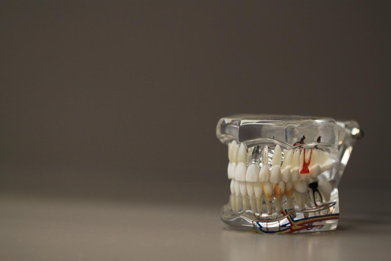 Uso de Ozono en Odontología